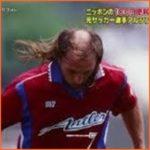 アルシンドは現在もハゲで髪型が変わってない?今と昔の画像を比較し検証
